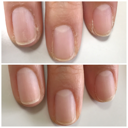 nailcare-beforeafter