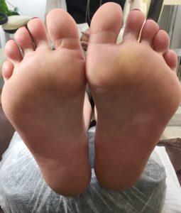 足の裏が痛くなくなった!