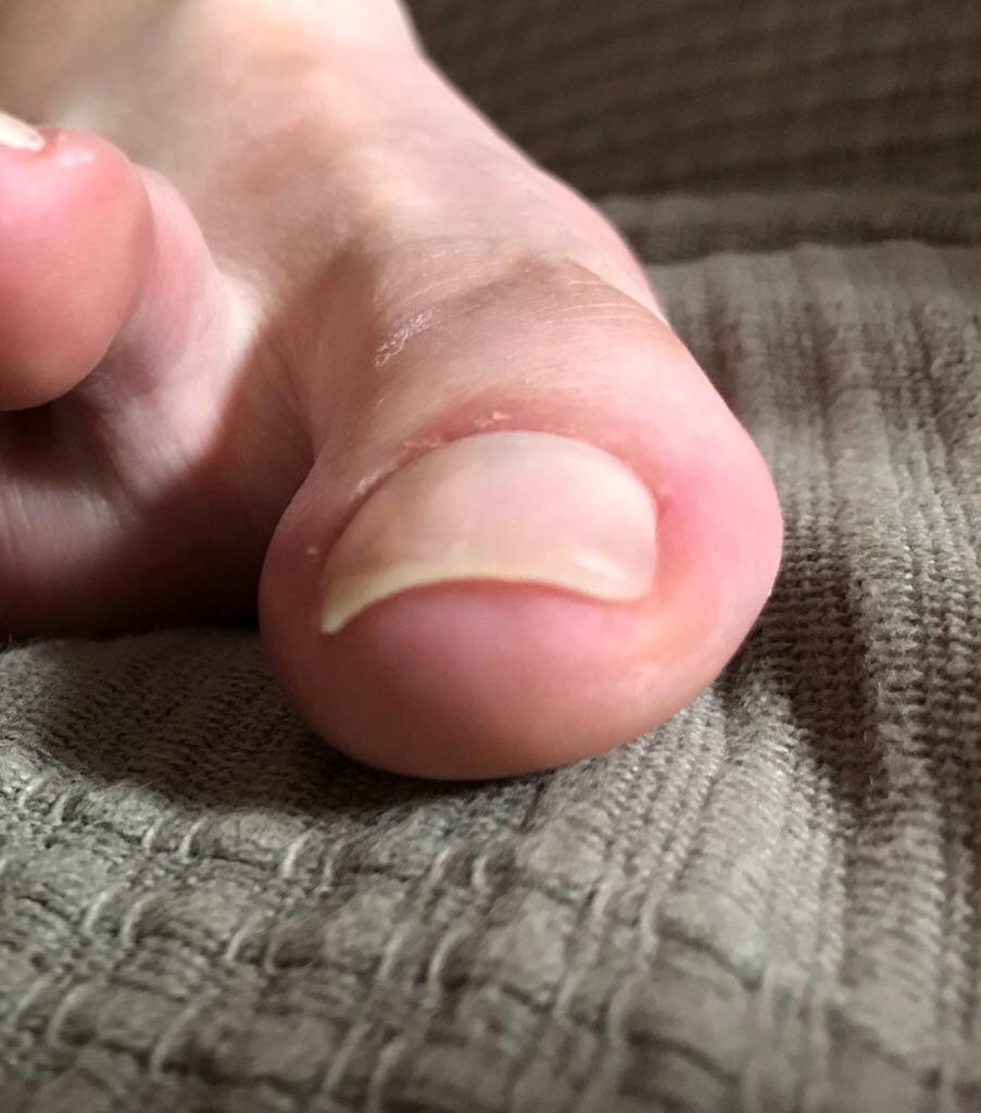 巻き爪が痛くて・・・