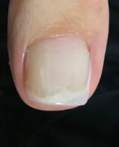 巻き爪が痛い時はネイルサロンへ〜